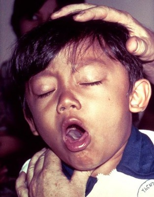 A young boy coughing due to pertussis. Source: CDC.